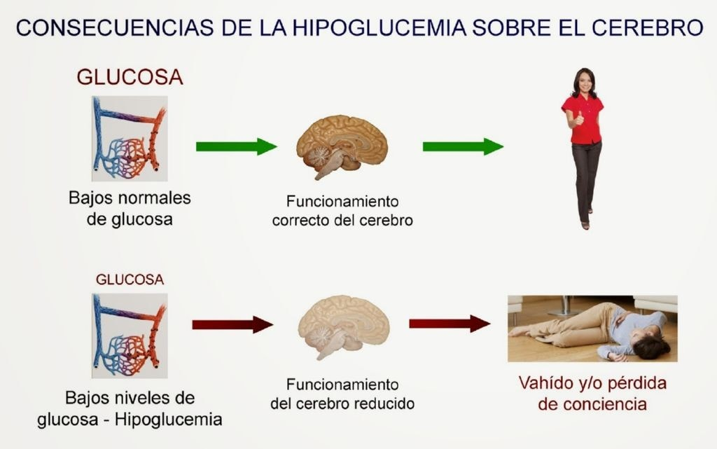 Descripcion de como se produce la hipoglucemia